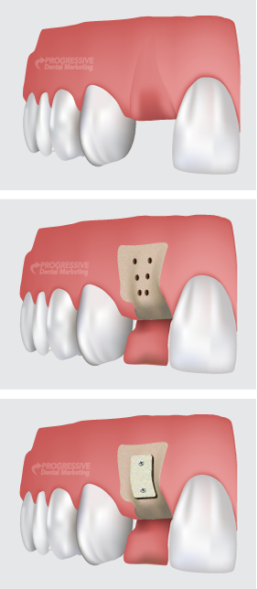 Dr. Davis Offers Bone Grafting Procedures