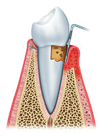 The Second Stage of Gum Disease is Periodontitis