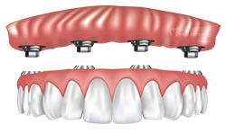 Dr. Davis Offers Dental Implant Dentures