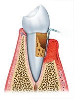 The Third Stage of Gum Disease is Advanced Periodontitis
