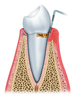 The First Stage of Gum Disease is Gingivitis