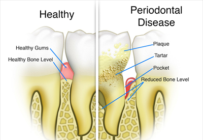 The Progression of Gum Disease